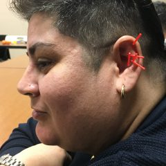 Puerto Rican Evacuees Receive Trauma Relief Through Acupuncture in Springfield