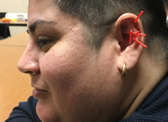 Puerto Rican Evacuees Receive Trauma Relief Through Acupuncture in Springfield